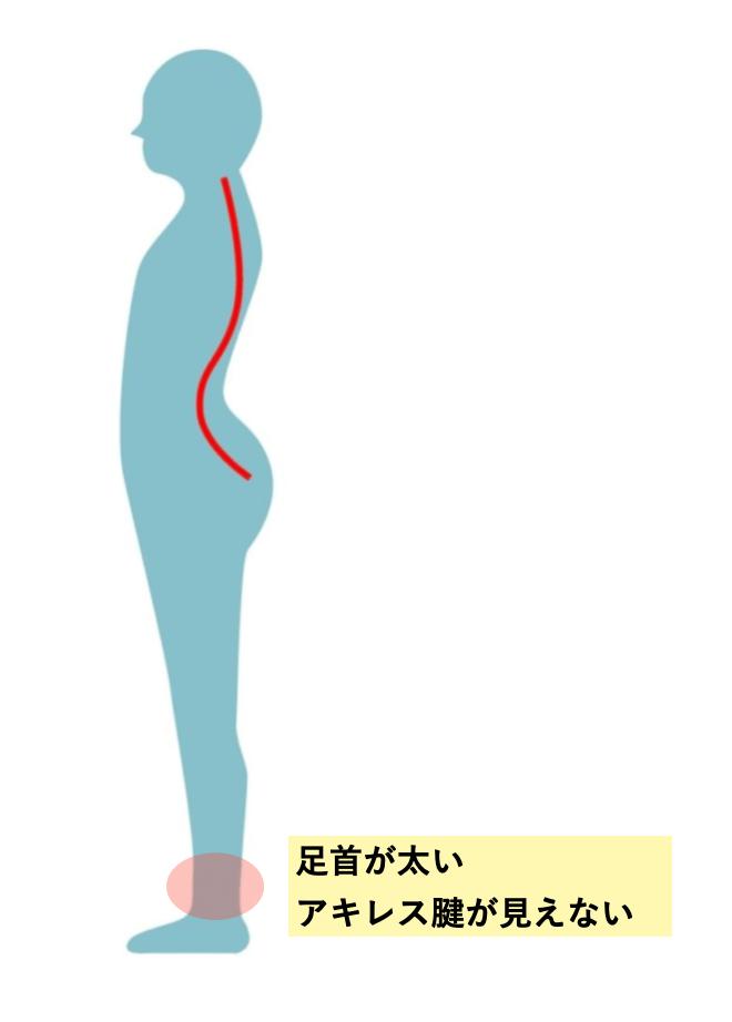 反り腰と足首
