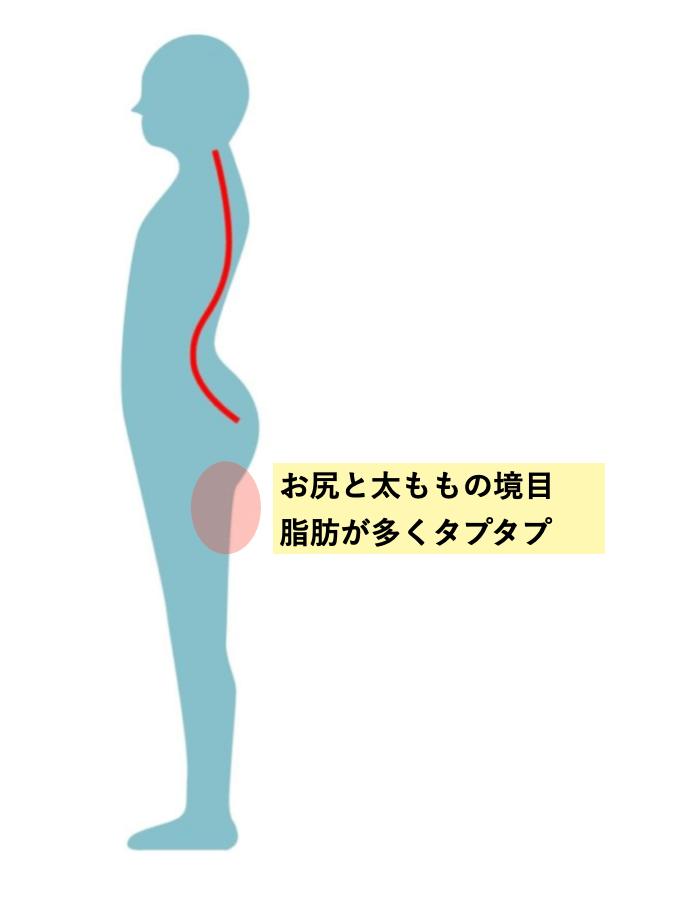 反り腰で脂肪がつきやすい場所