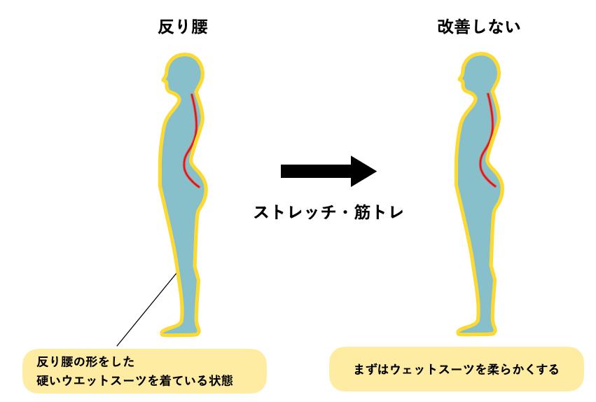 反り腰と筋膜