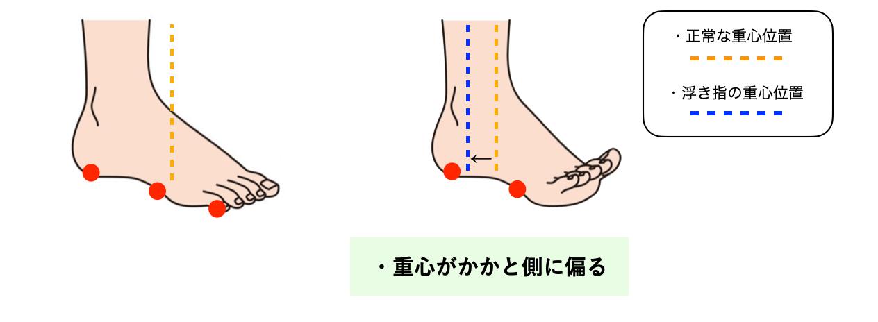 反張膝と浮き指