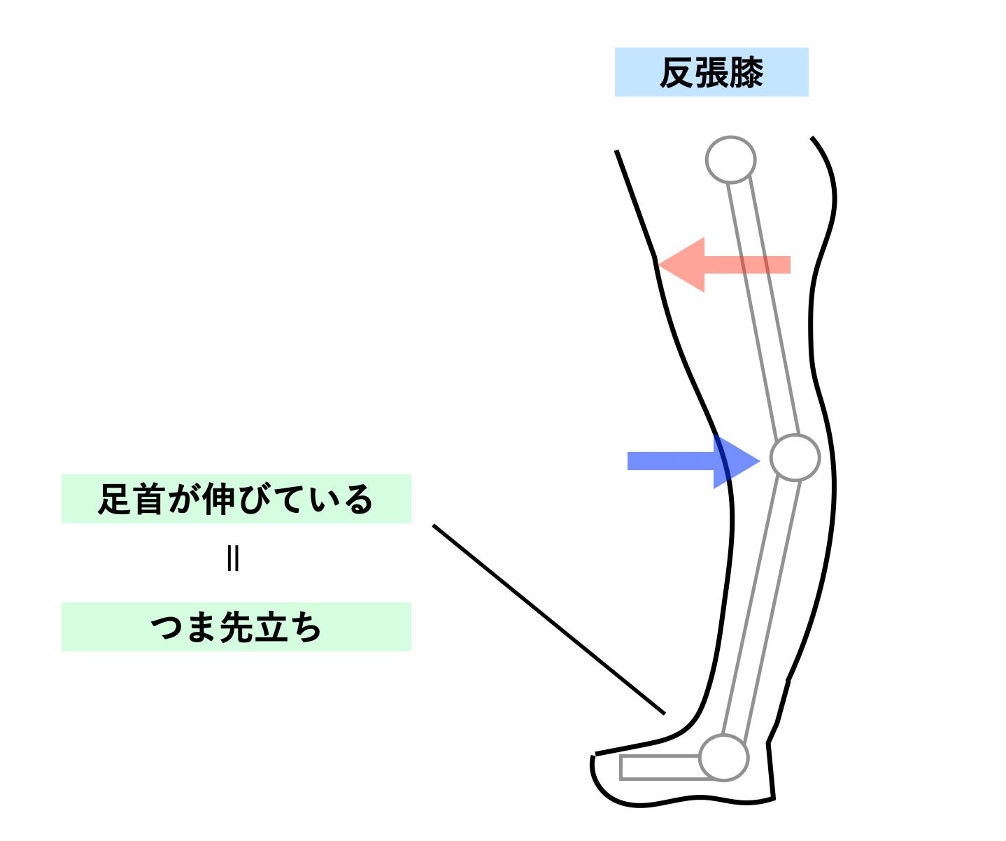 反張膝とつま先の状態