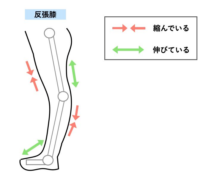 反張膝で縮む筋肉